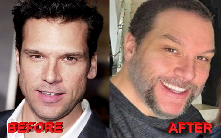 Dane Cook Plastic Surgery Rumors - Botox and Rhinoplasty Done to His Face?