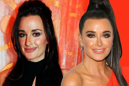 Kyle Richards before and after plastic surgery.