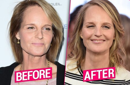 Helen Hunt before and after plastic surgery.