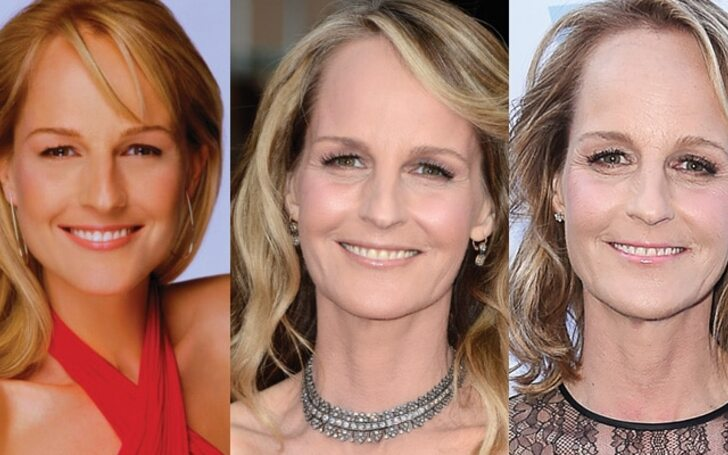 Helen Hunt Plastic Surgery - Did She Have a Facelift