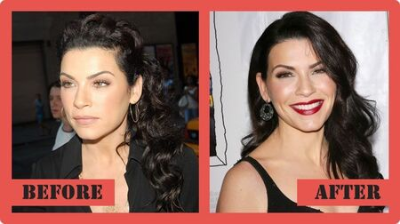 Julianna Margulies before and after plastic surgery.