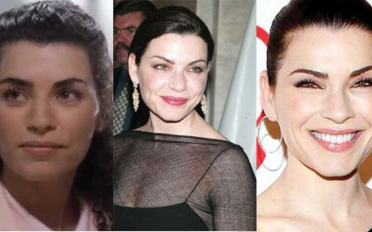 Real Truth on Julianna Margulies Plastic Surgery Speculations