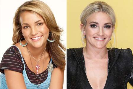 Jamie Lynn Spears before and after alleged plastic surgery.