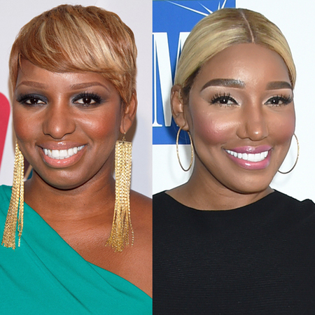 NeNe Leakes before and after plastic surgery.