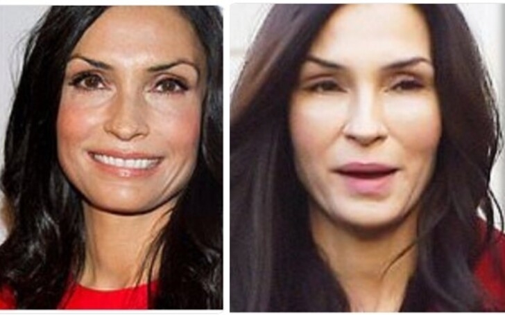 Famke Janssen Plastic Surgery Face - Before and After