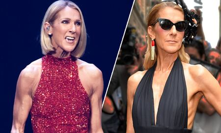 Celine Dion before and after weight loss.