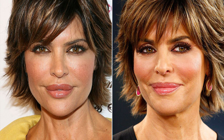 Lisa Rinna Plastic Surgery - Learn All the Details About Her Signature Lips and Augmented Breasts!