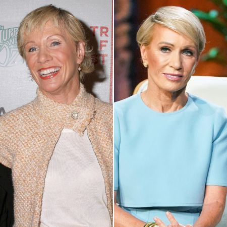 Barbara Corcoran before and after plastic surgery.