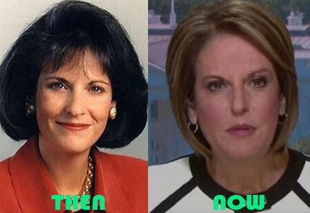 Gloria Borger before and after Facelift plastic surgery.