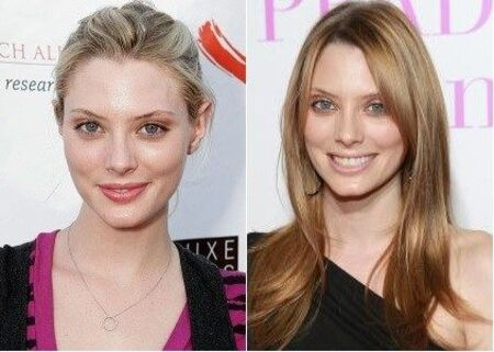 April Bowlby before and after alleged plastic surgery.