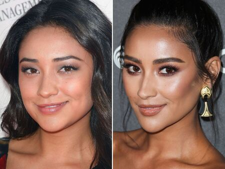 Shay Mitchell before and after plastic surgery.