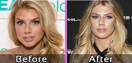 Charlotte McKinney before and after plastic surgery.