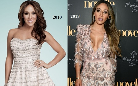 Melissa Gorga before and after plastic surgery.