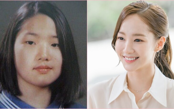 Full Story on Park Min-young's plastic surgery