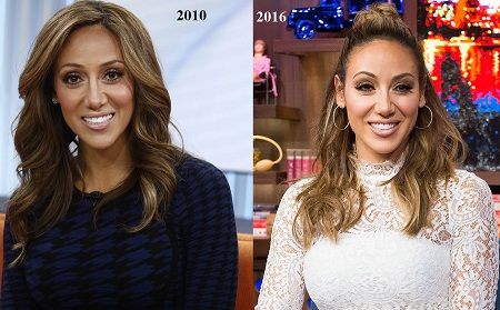 Melissa Gorga before and after her nose job.