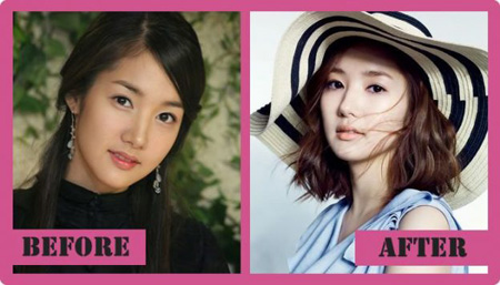 Park Min-young before and after plastic surgery.