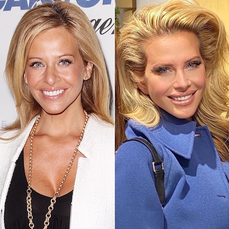 Dina Manzo before and after plastic surgery