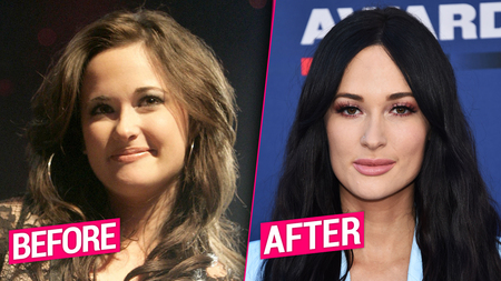 Kacey Musgraves before and after plastic surgery.