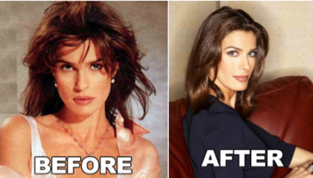 Kristian Alfonso before and after alleged plastic surgery.