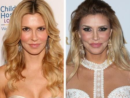 Brandi Glanville before and after plastic surgery.