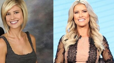 Christina Anstead before and after plastic surgery.