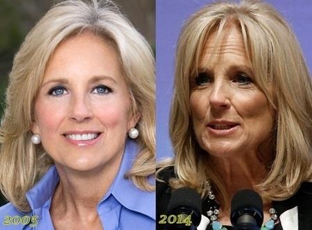 Jill Biden before and after alleged plastic surgery.