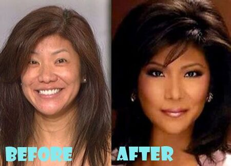 Julie Chen before and after an alleged nose job plastic surgery.