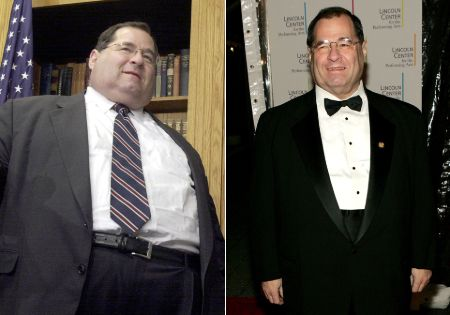 Jerry Nadler before and after weight loss surgery.