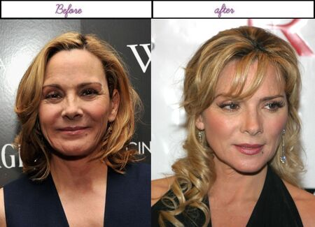 Kim Cattrall before and after alleged plastic surgery.