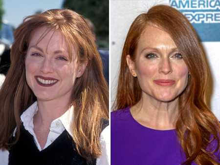 Julianne Moore before and after alleged plastic surgery.