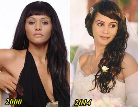Persia White before and after plastic surgery.