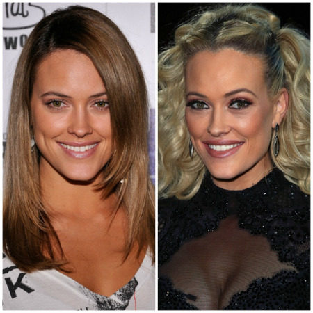 Peta Murgatroyd before and after plastic surgery.