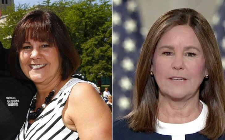 Karen Pence before and after plastic surgery.