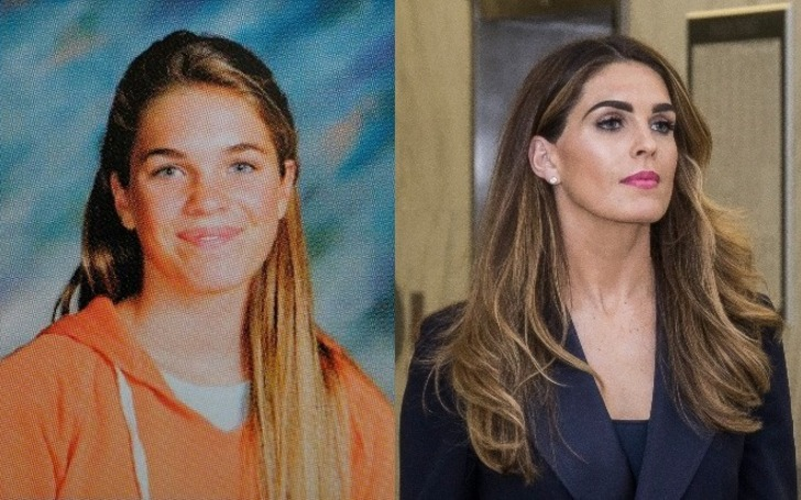Hope Hicks before and after plastic surgery.