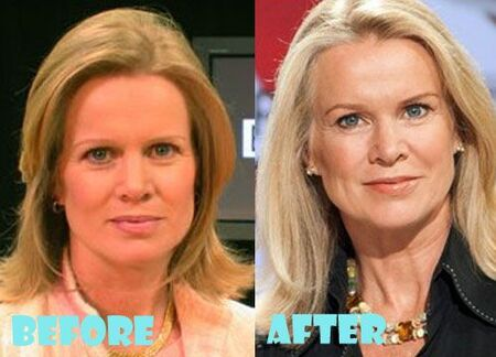Katty Kay before and after facelift plastic surgery.