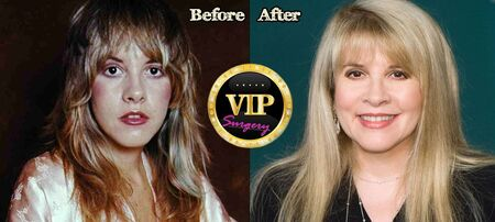 Stevie Nicks before and after plastic surgery.
