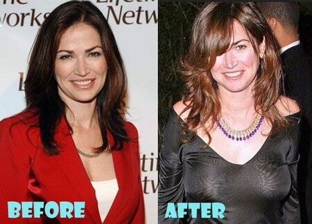 Kim Delaney before and after plastic surgery.
