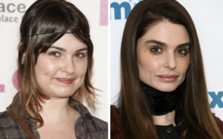 Aimee Osbourne before and after plastic surgery.