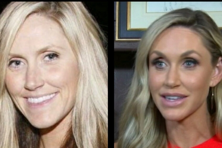 Lara Trump before and after plastic surgery.