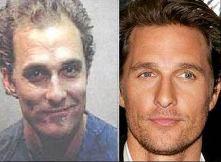 Matthew McConaughey before and after hair transplant plastic surgery.