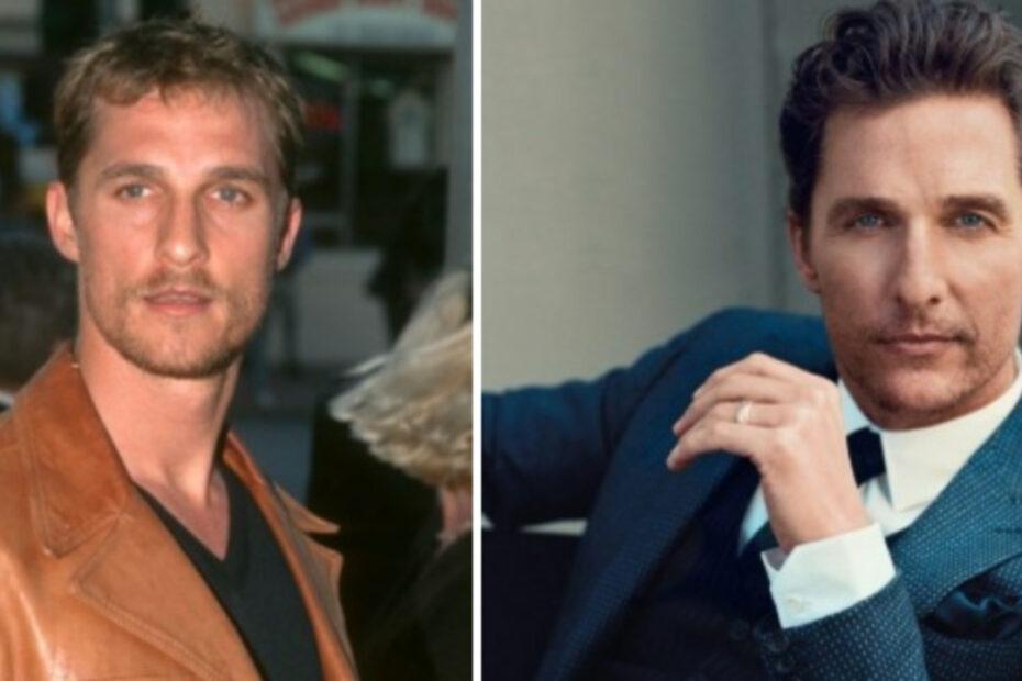 Matthew McConaughey's Plastic Surgery - Hair Transplant, Eyelids, Nose Job, Facelift, Botox