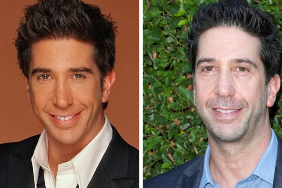 David Schwimmer before and after plastic surgery.