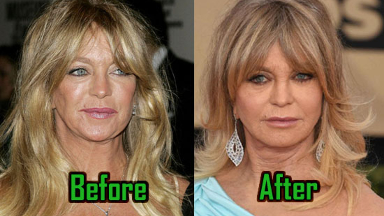 Goldie Hawn before and after plastic surgery.