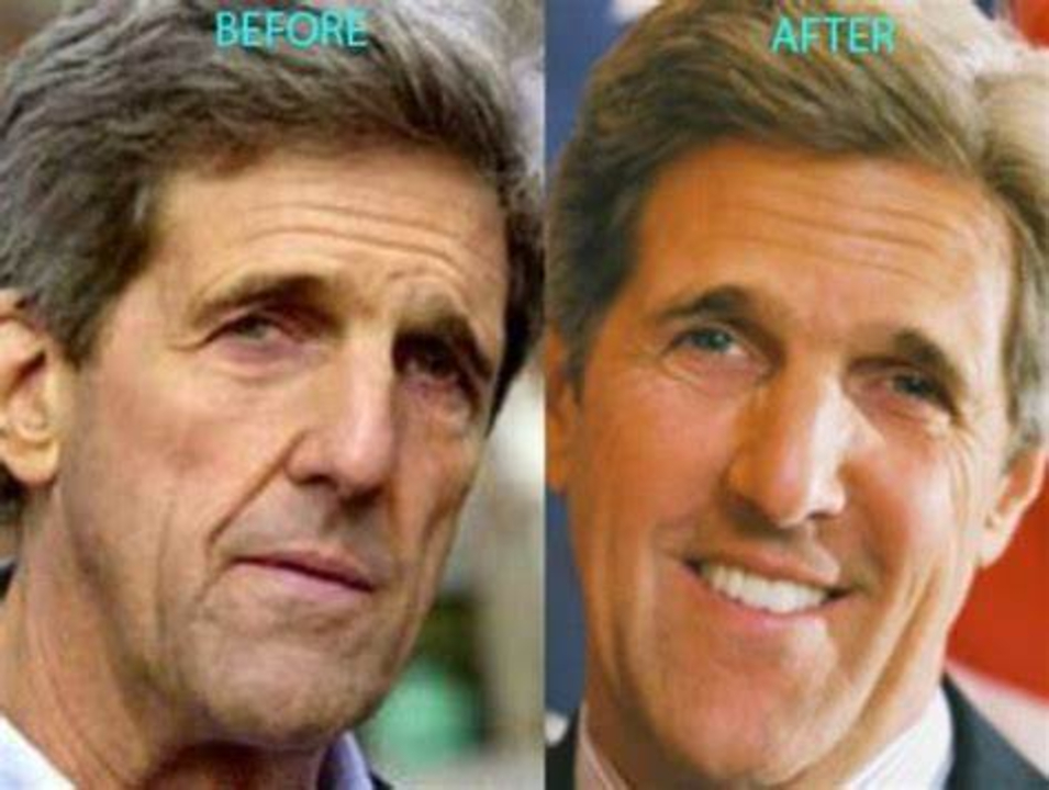 John Kerry before and after plastic surgery.