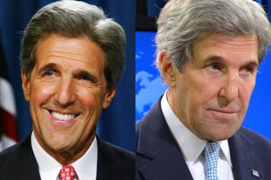 John Kerry's plastic surgery includes Botox.