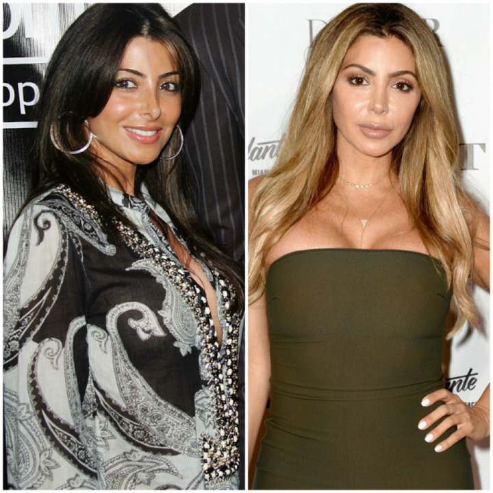 Larsa Pippen before and after plastic surgery.