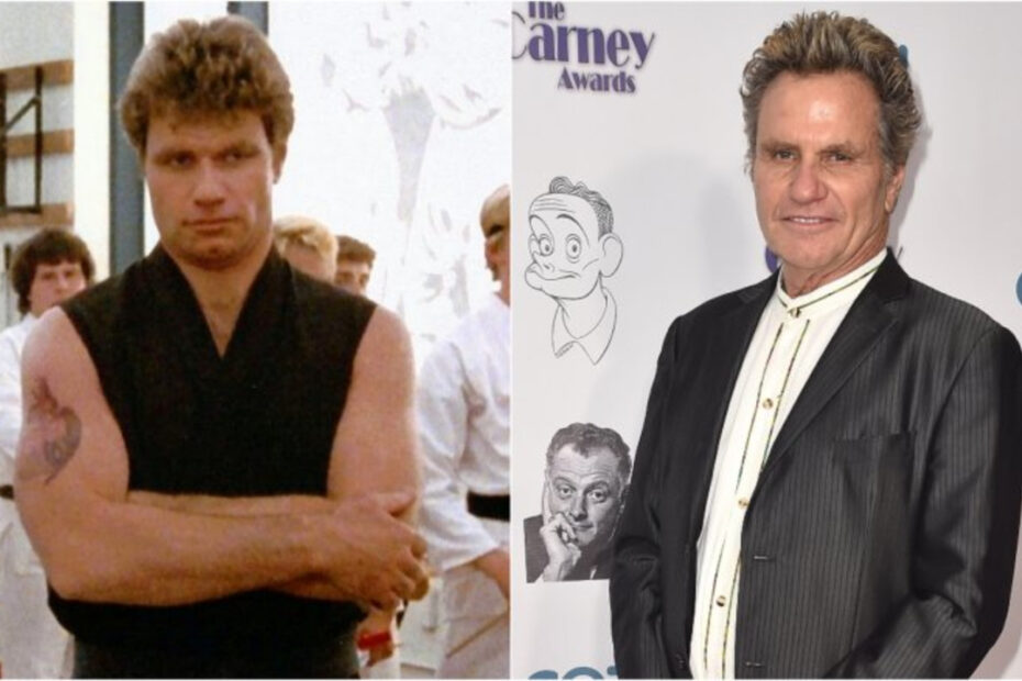 Martin Kove before and after plastic surgery.