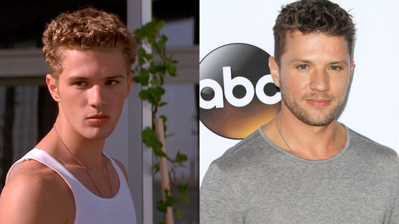 Ryan Phillippe before and after alleged facelift plastic surgery.