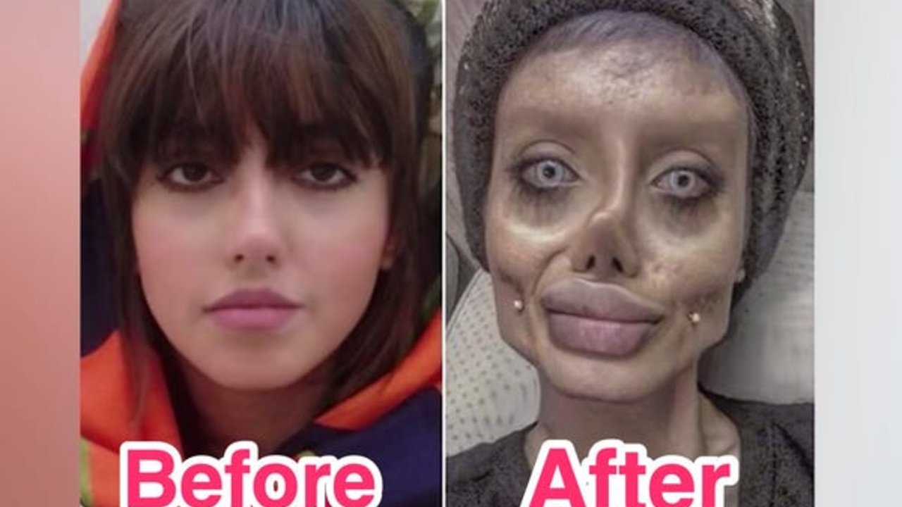 Sarah Taber before and after plastic surgery.