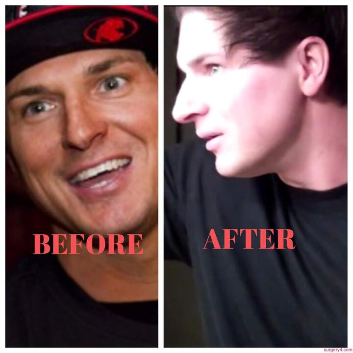 Zak Bagans before and after nose job plastic surgery.